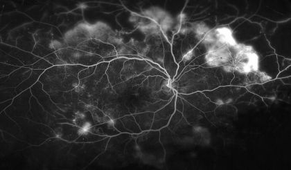 This image shows the blood vessels in the retina of a patient with  proliferative diabetic retinopathy.